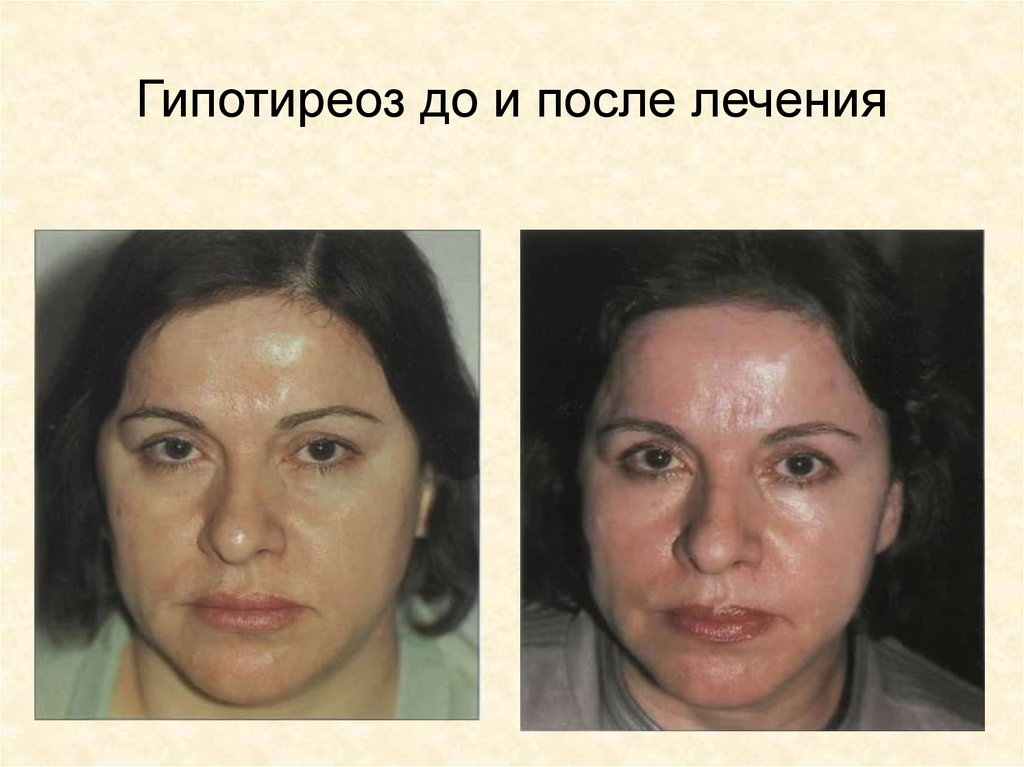 после лечения от паразитов продолжается аллергия