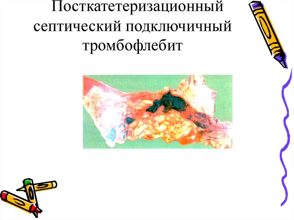 тромбофлебит постинъекционное осложнение связанное с