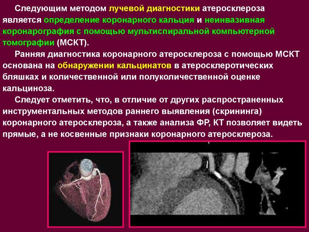 Атеросклероз сосудов нижних конечностей гангрена
