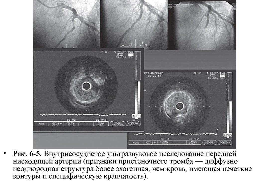 презентация на тему атеросклеротический кардиосклероз