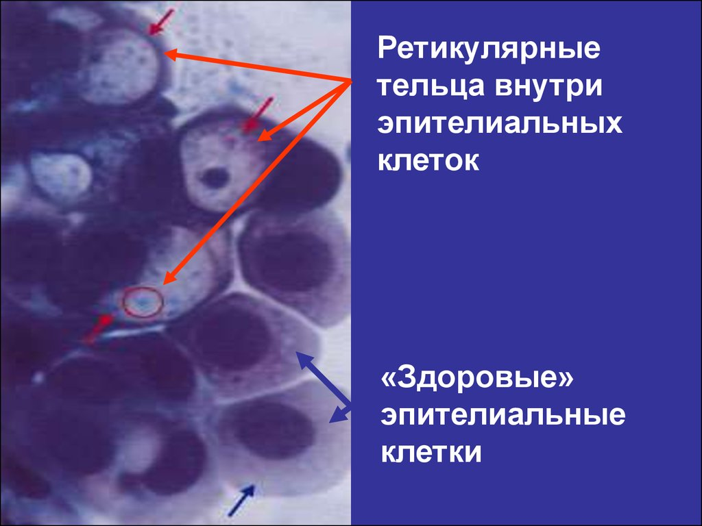 Книгу Инфекции, Передаваемые Половым Путем Е.В.Соколовский