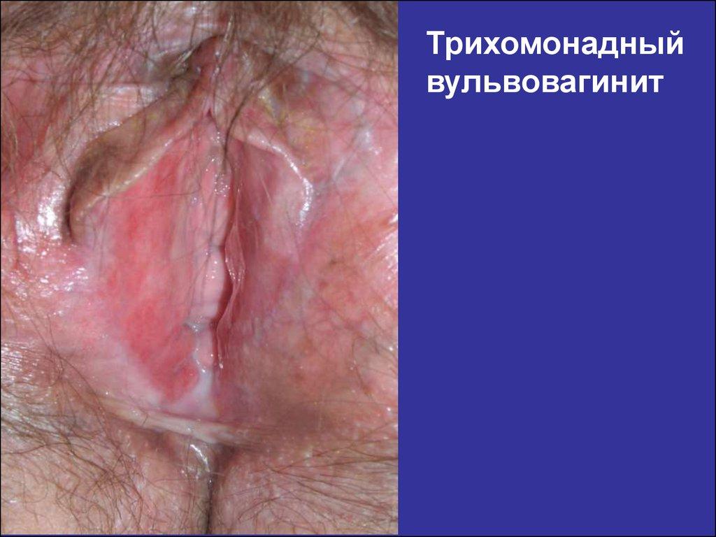Препараты при лечении язвенной болезни желудка