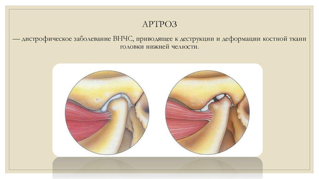 синдром височно-нижнечелюстного сустава что это