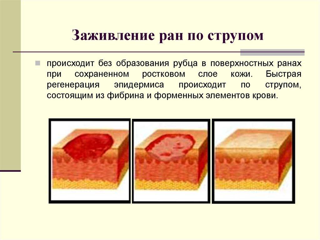 Что делать если содрал верхний слой кожи