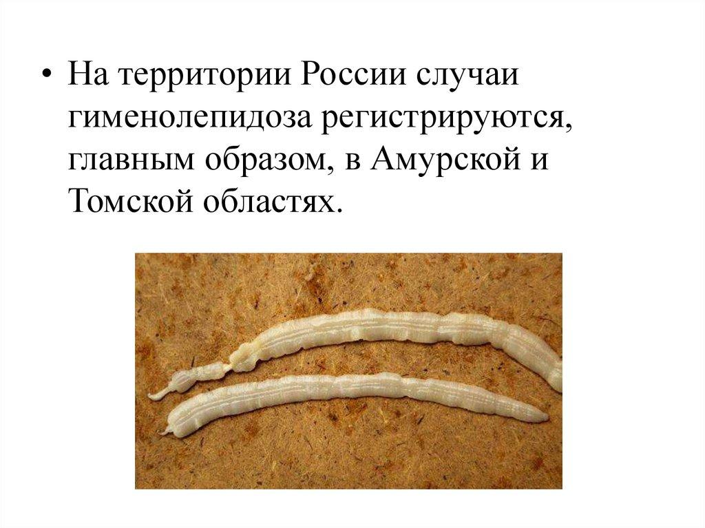 плоские черви паразиты человека и животных