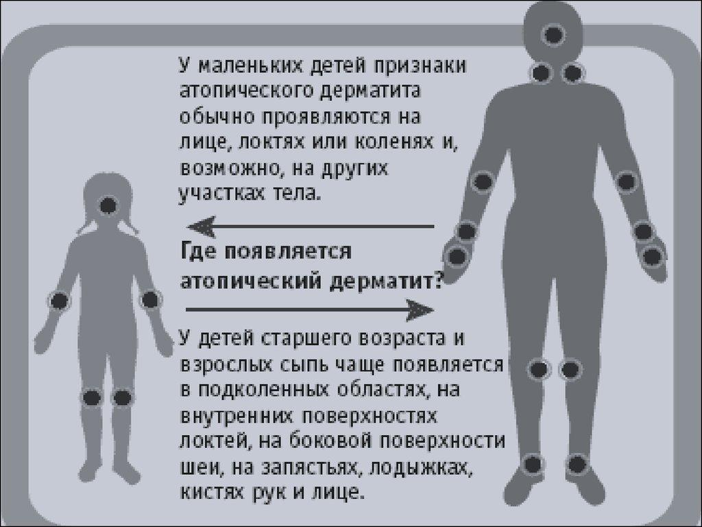 Диффузный нейродермит лечение