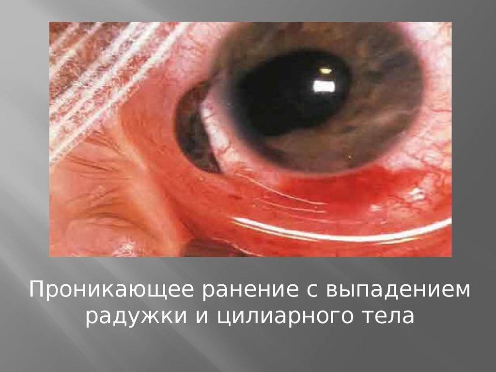 Офтальмия