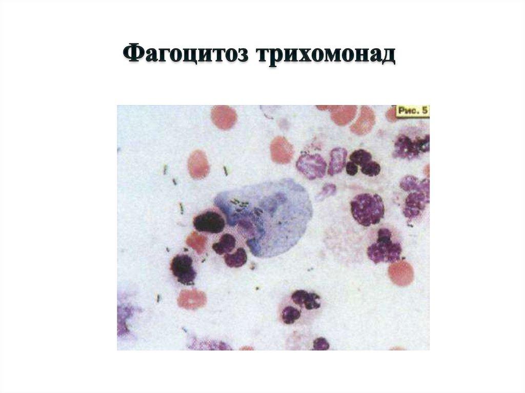 кожные паразиты у людей моллюски