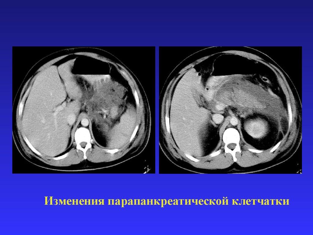 препарат при панкреатите на а