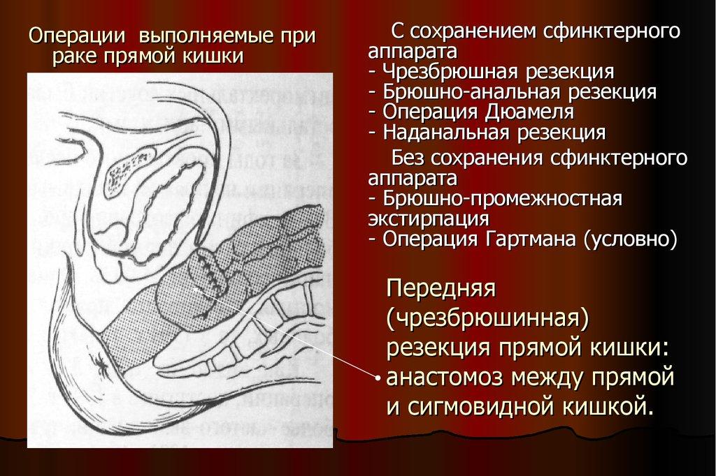 Лечение колоректального рака (толстой кишки)