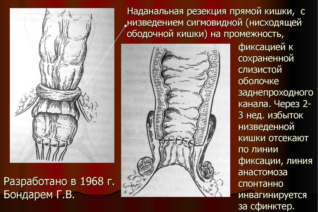 vlagalishe-iz-sigmovidnoy-kishki