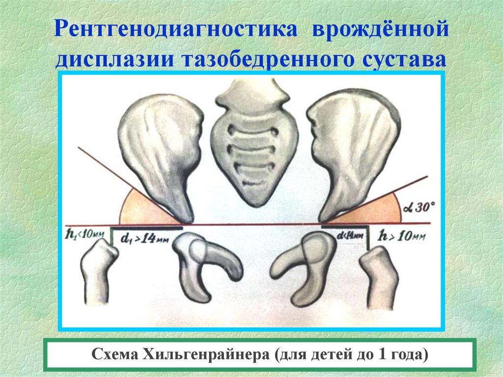 взрослая дисплазия тазобедренных суставов