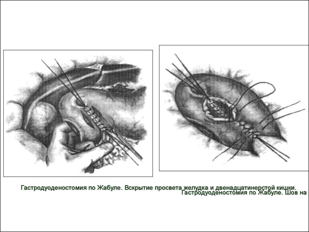 Эффективные препараты для лечения сифилиса