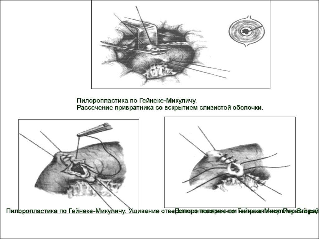 Невропатия лучевого нерва лечение народные средства