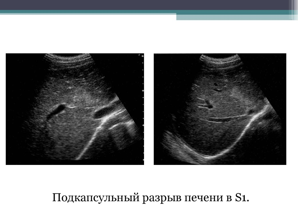 Разрыв селезенки у беременных