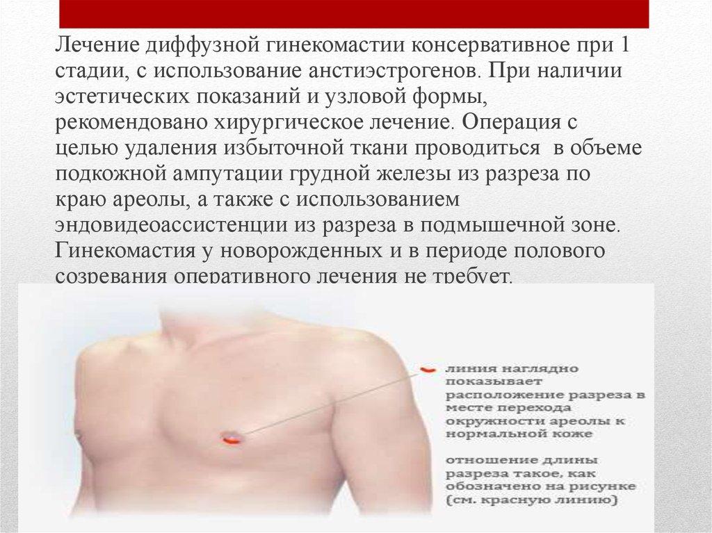Фиброзно кистозная мастопатия молочных желез лечение