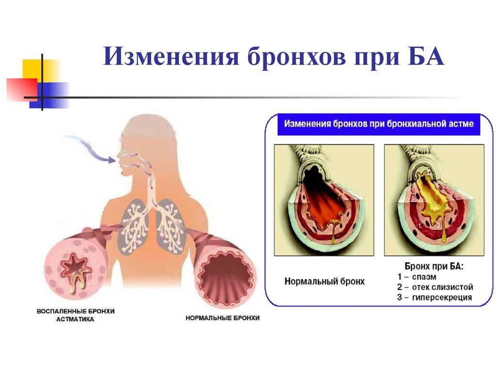 синдром перекреста бронхиальная астма хобл