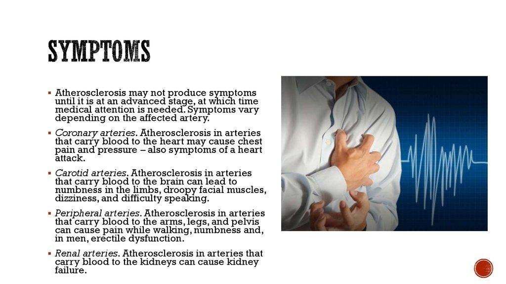 Atherosclerosis and its treatment - презентация онлайн | 1024 x 574 jpeg 102kB
