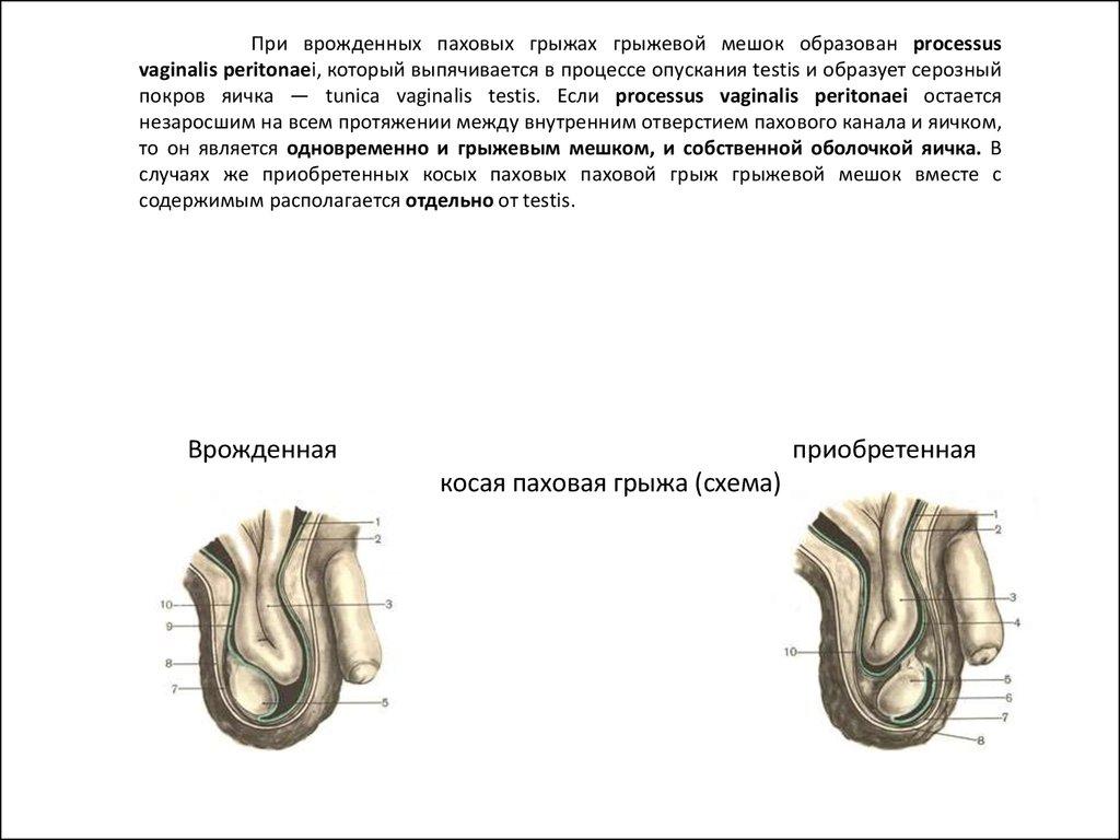 схема пахового канала поперечное сечение