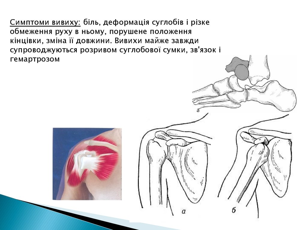 association for the study of osteosynthesis Osteosynthesis: applications and also known as the 'association for the study of internal fixation' (3, 4) a femoral fracture model study performed in.