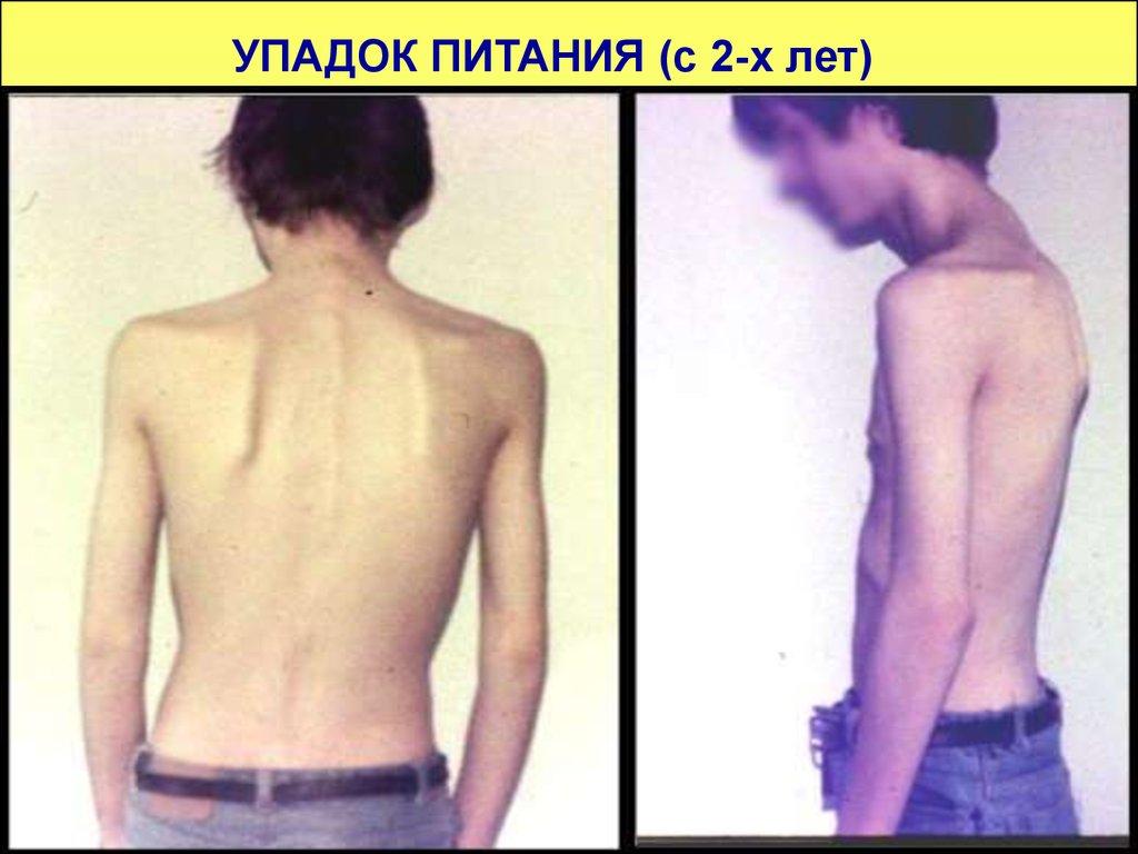 энтеральное питание для похудения
