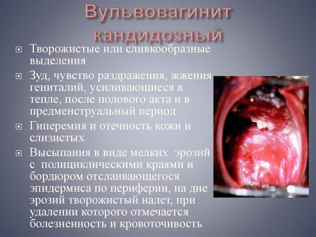 Особенности клинической картины кандидозной инфекции - презентация онлайн