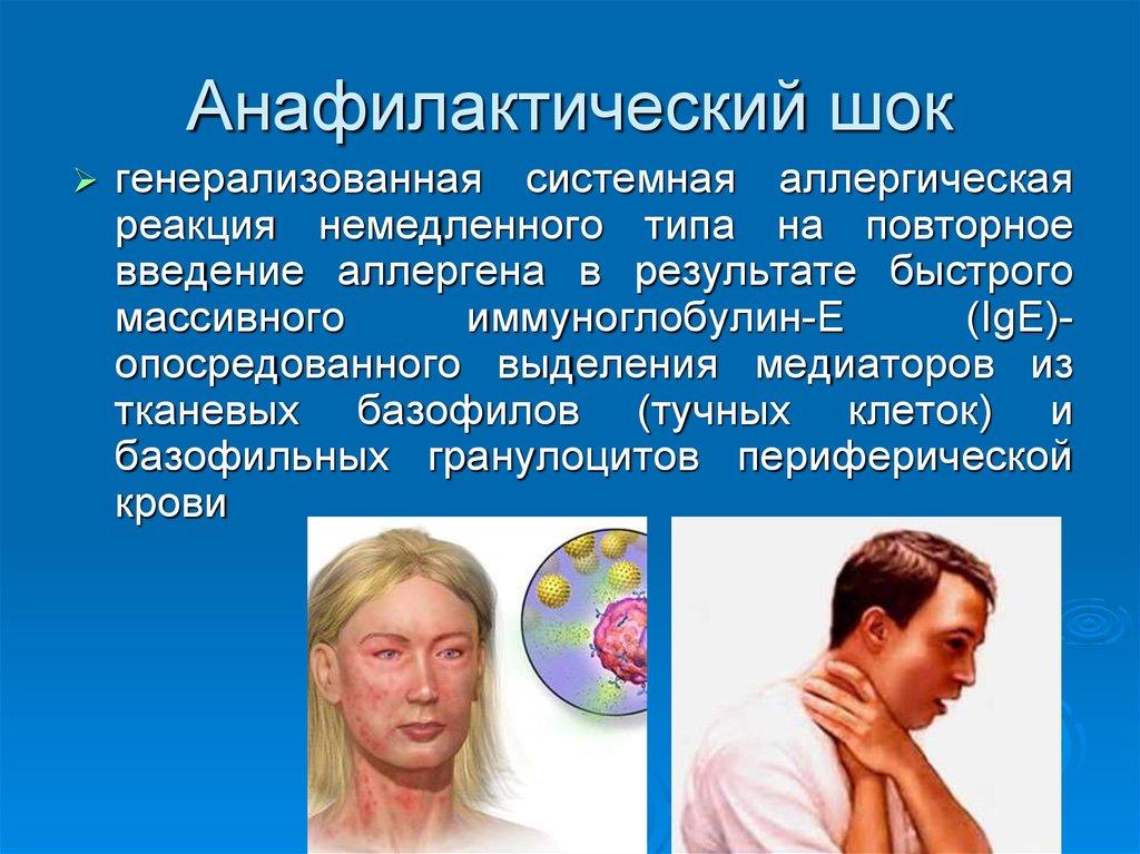 аллергия на сперму у мужчины