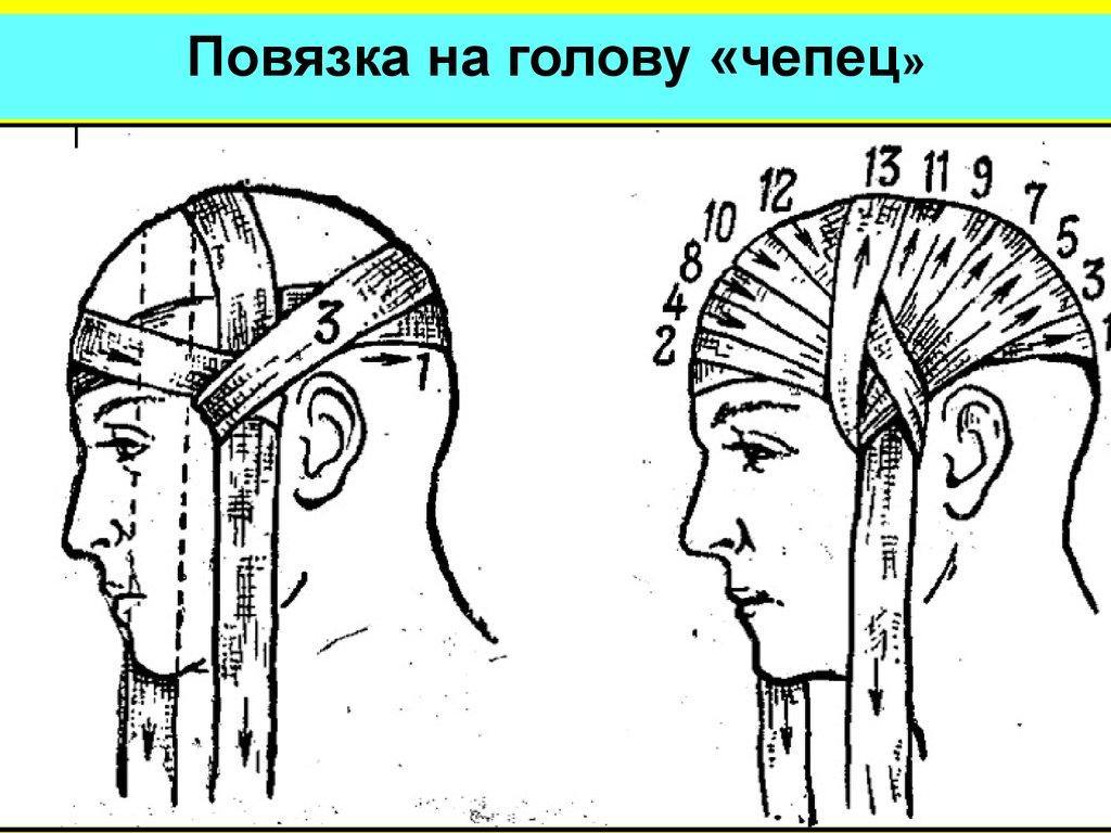 перевязка головы в картинках