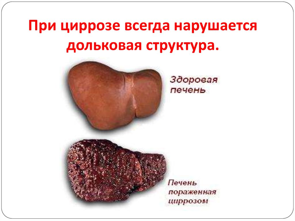 гепатит цирроз презентация