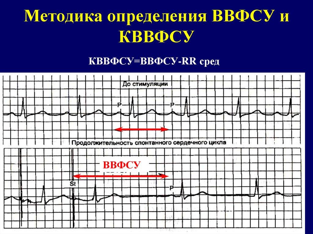 Низкое давление тахикардия при беременности