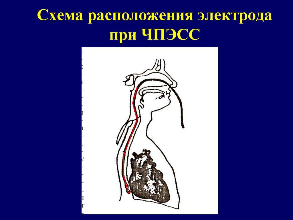 Элек��о�изиологи�е�кое и��ледование п�езен�а�ия онлайн