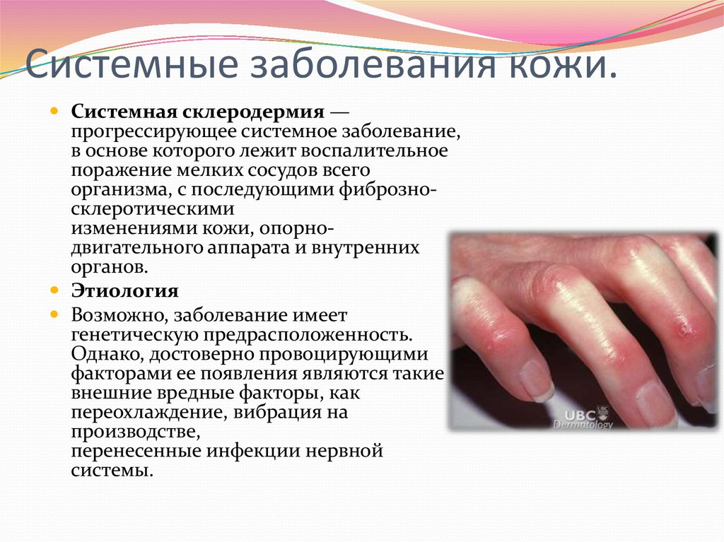 Заболевания кожи и ногтей в
