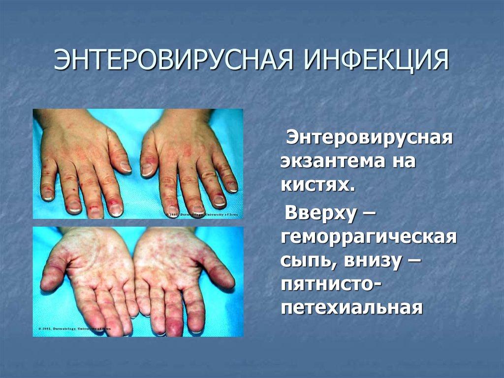 Лечение энтеровирусной инфекции в домашних условиях 709