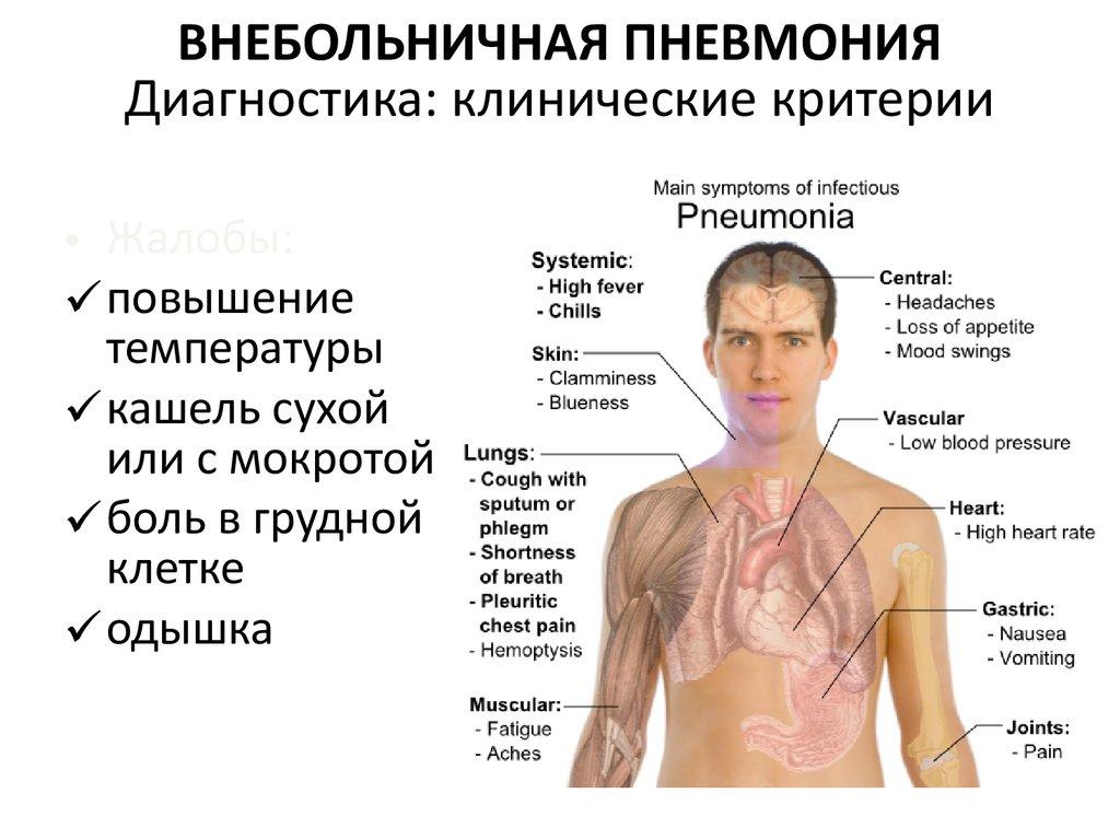 потеряли свидетельство пневмония без температуры но с сухим кашлем делать