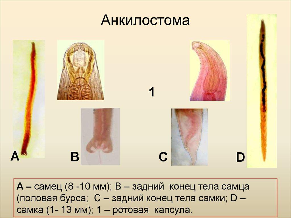 нематоды паразиты человека