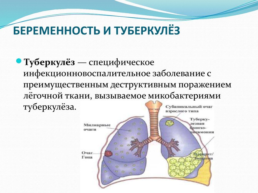 Чем грозит туберкулез беременной 530