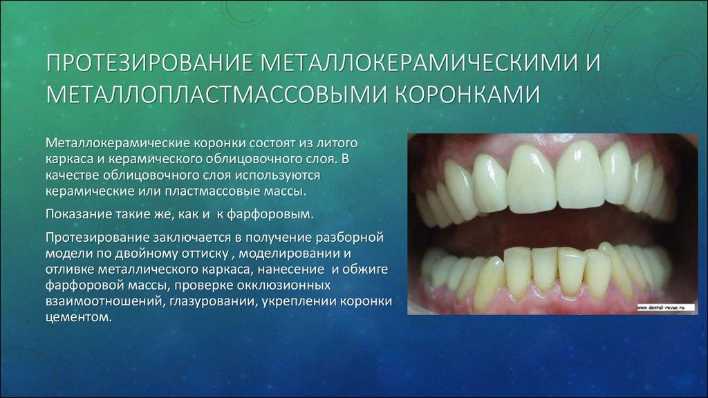 Когда меняются молочные зубы у той терьеров