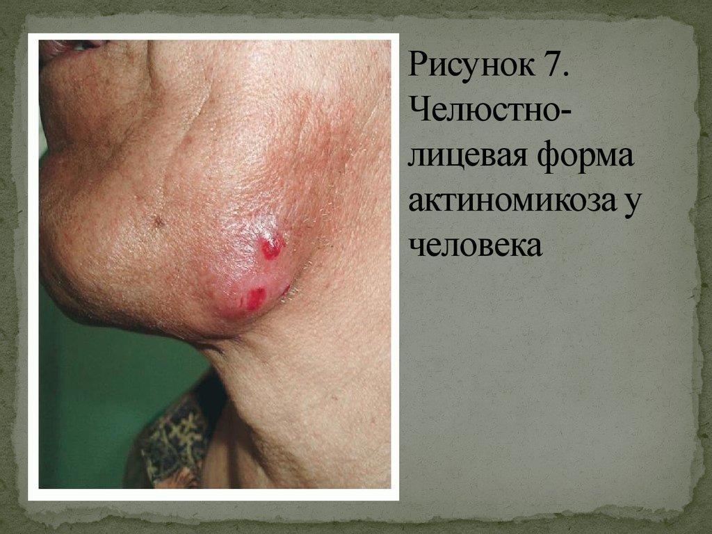 Болит лимфоузел на шее и температура 37