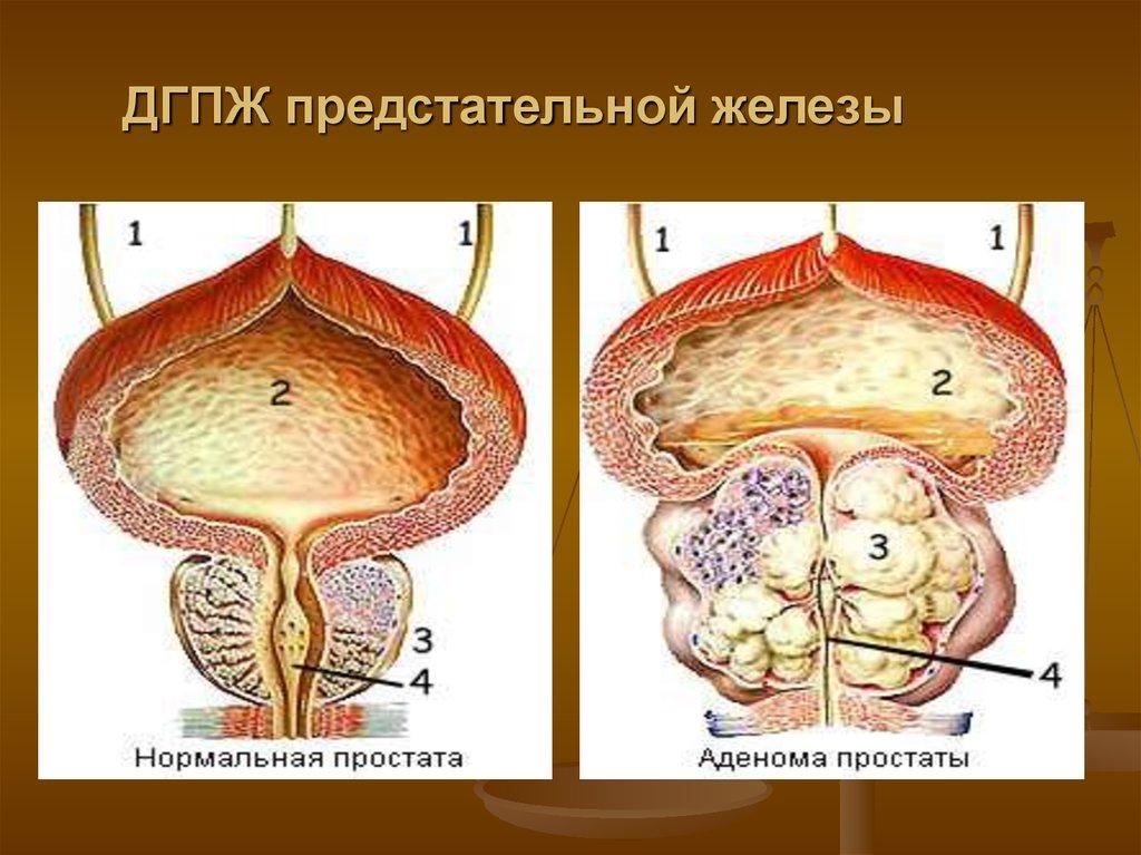 Гиперплазия аденомы простаты