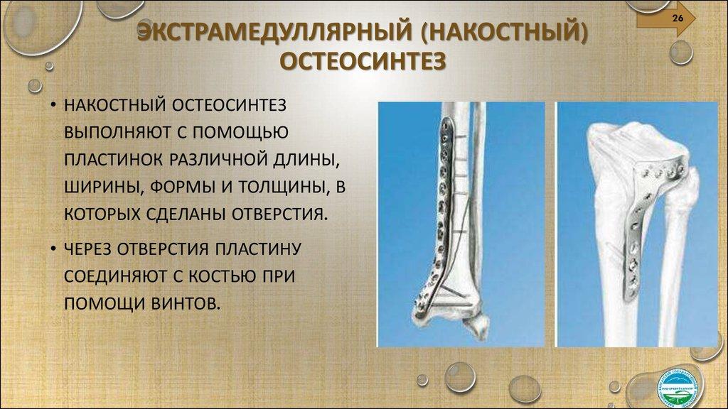 osteosynthesis types