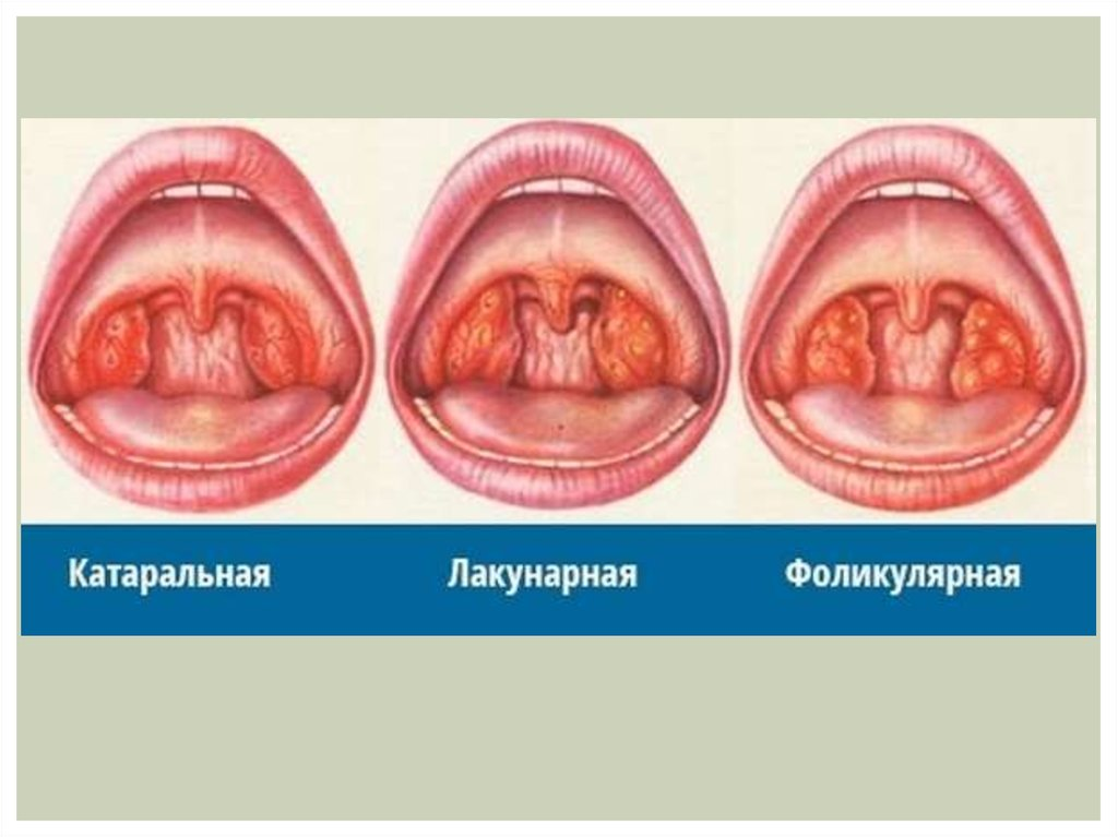 Катаральная ангина у детей и взрослых: симптомы и лечение изоражения