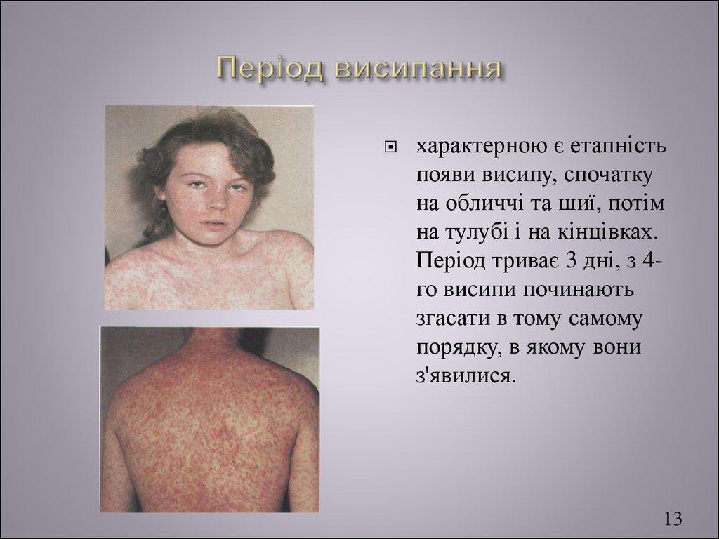 free antenatal diagnosis