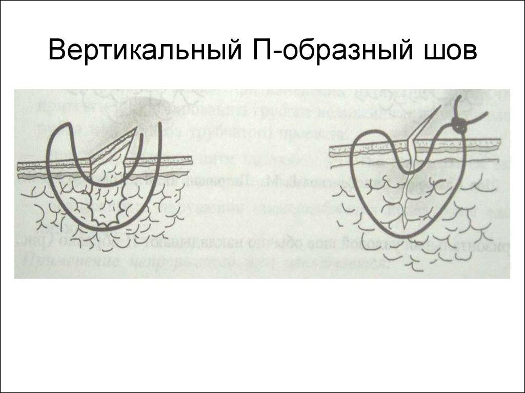 Шов П