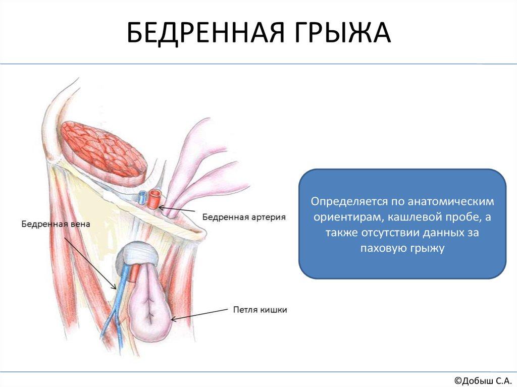 Паховая грыжа лечение без операции - Антигрыжа