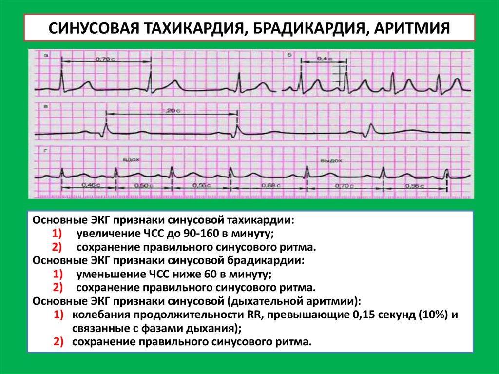 Тахикардия симптомы и лечение беременных 82