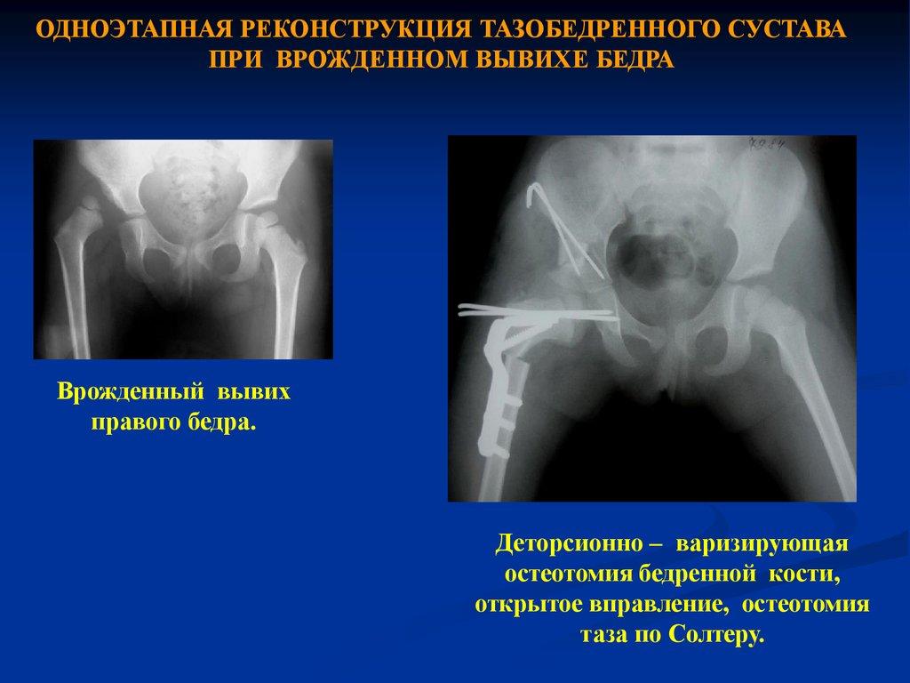 признаки артрита тазобедренного сустава на рентгене