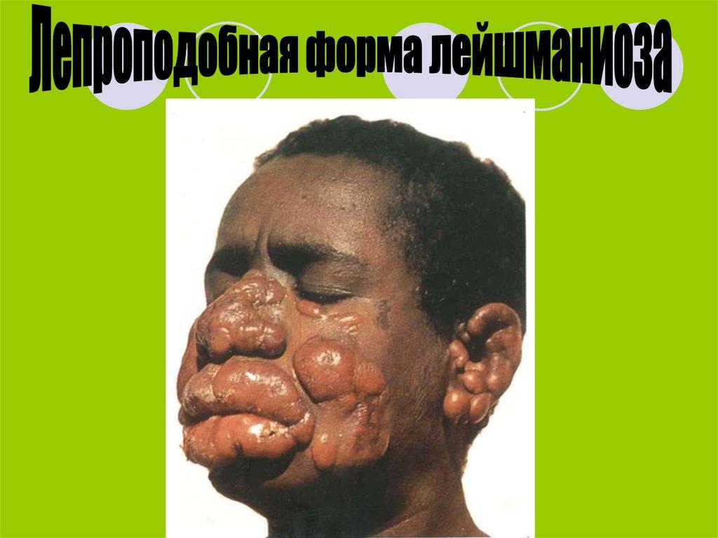 паразиты в крови человека фото