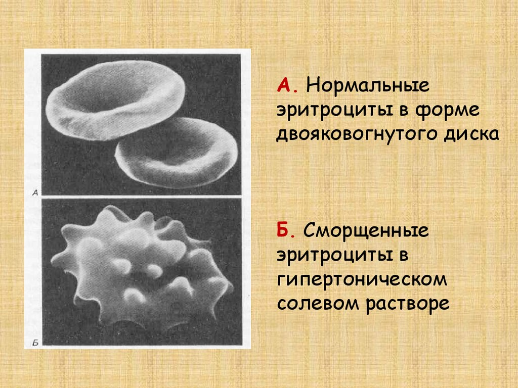 Рис. 2. Состояние эритроцитов в растворе NaCl