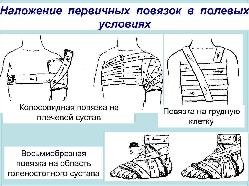 Как сделать повязку на ребрах 126