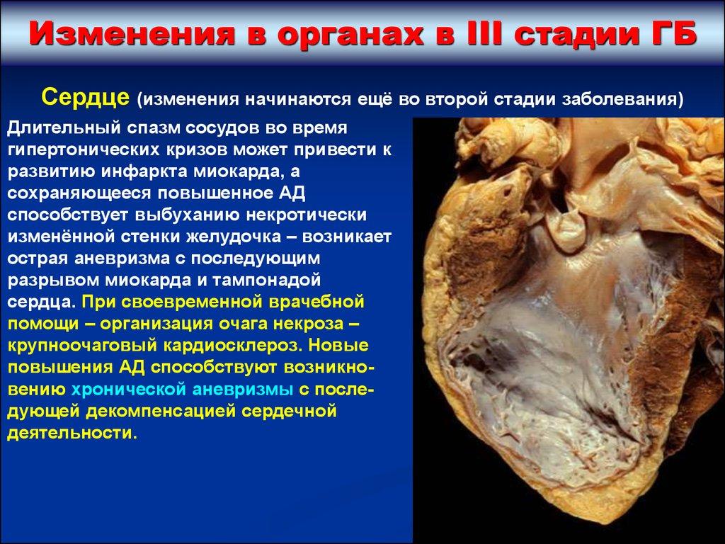 Атеросклероз сосудов головного мозга гипертоническая болезнь